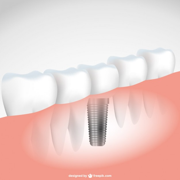 Top 5 Reasons Why You Should Wear A Dental Implant