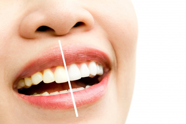 Know About The Top 5 Benefits Of Having Whiter Teeth