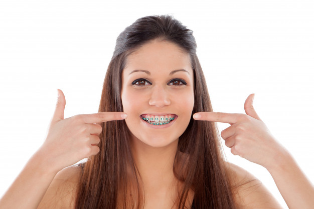 dental braces - Island Dental