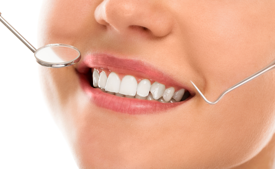 How The In-Office Teeth Whitening Process Works