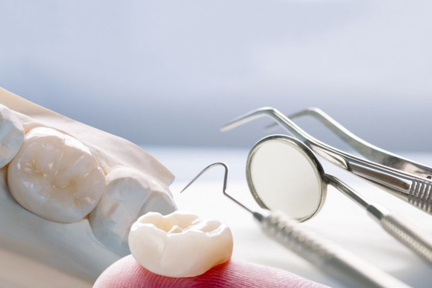 Dental Crowns - Types & Cost